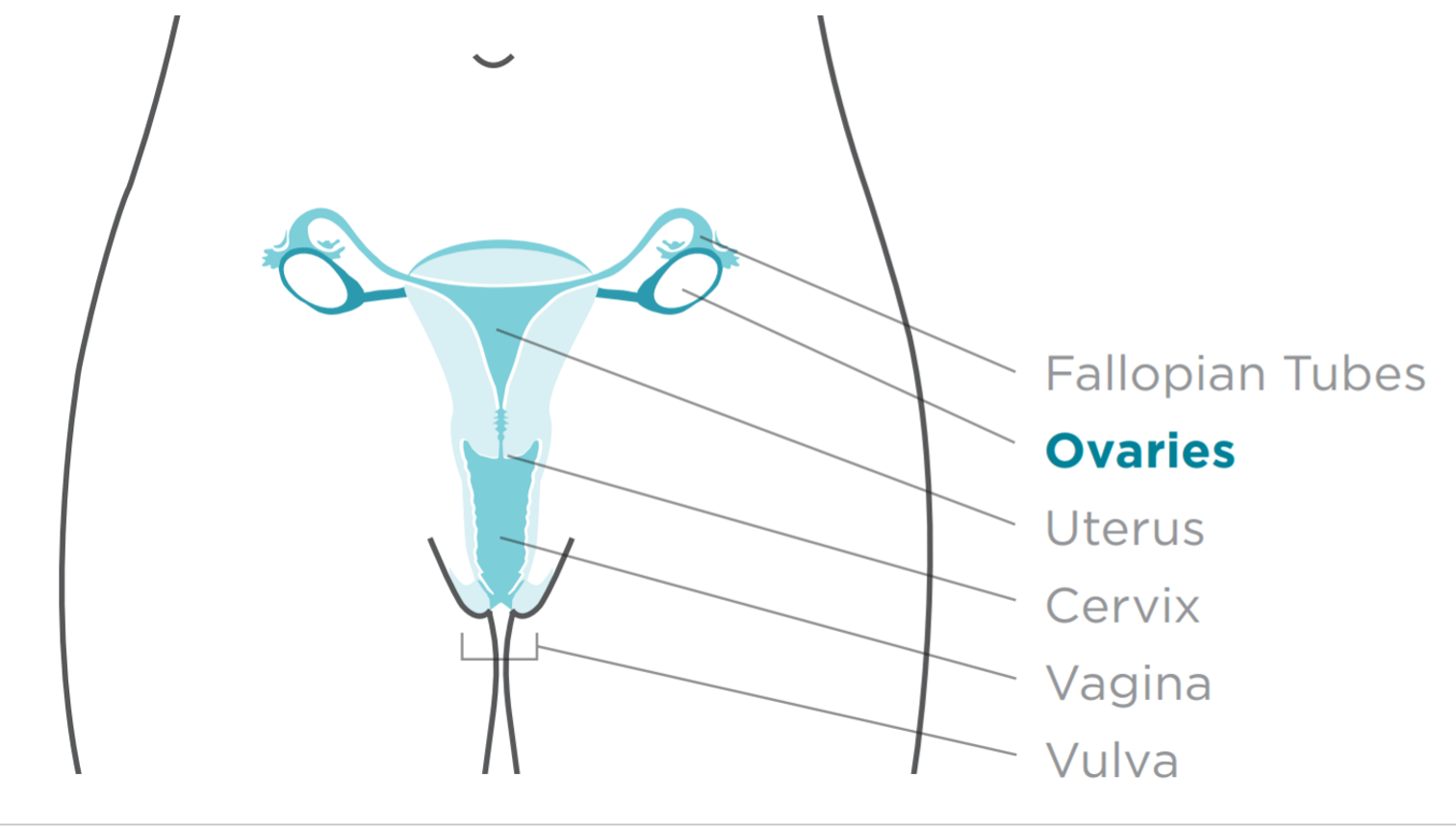 Site_of_ovarian_cancer